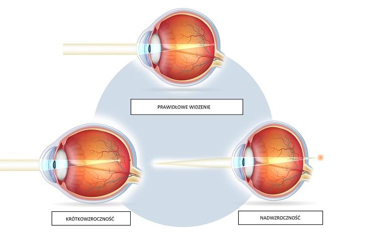 Jakie są wady wzroku?