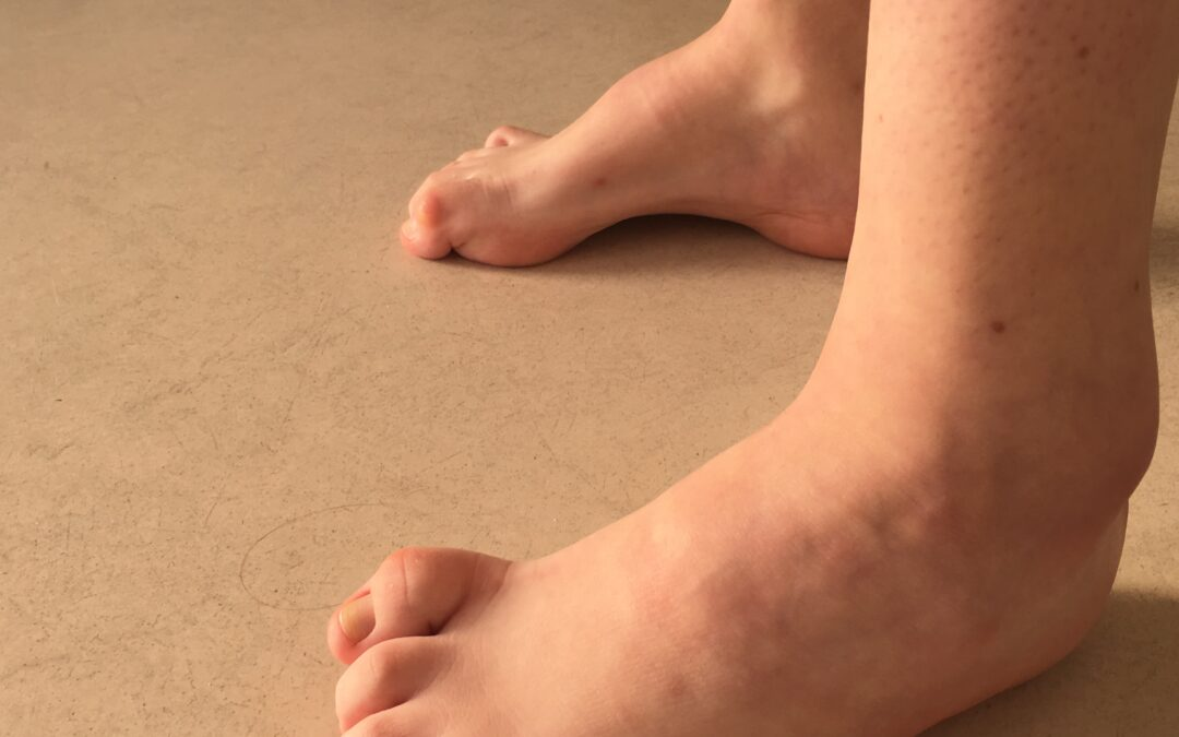 Wrodzone stopy wydrążone