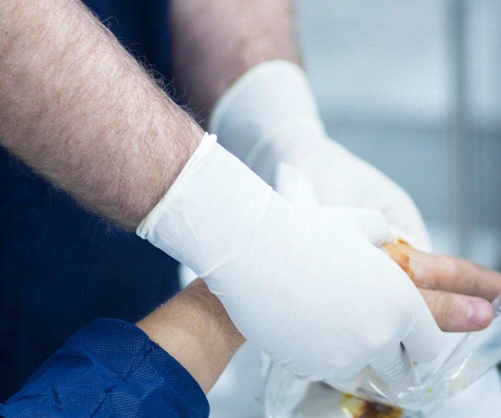 chirurgia reki