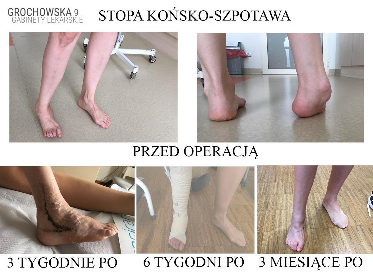 stopa końsko-szpotawa